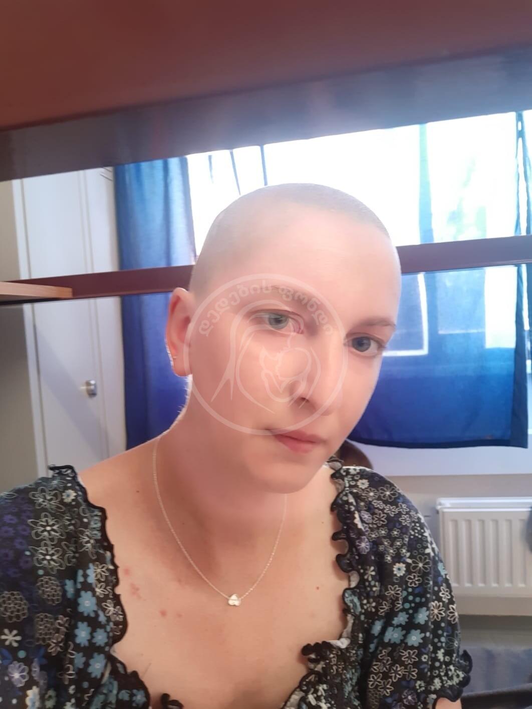ალიონა კენჭოშვილი, ფილტვის სიმსივნე